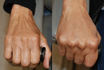 Hand Rejuvenation using Silikon-1000