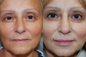 Non-Surgical Facial Rejuvenation and Lip Augmentation with Silikon-1000