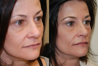 Non-Surgical Facial rejuvenation with Silikon-1000 and Botox.
