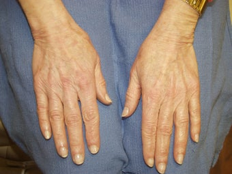 Hand Rejuvenation with Radiesse