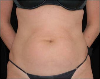 SlimLipo Abdomen Showing Skin Tightening