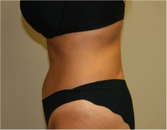 SmartLipo Love Handles, Lateral View