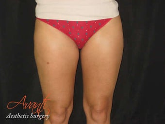 Smart Lipo - Outer Thighs