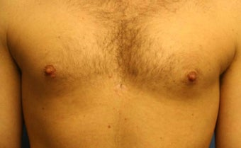 Smart-Lipo of the Chest, Liposuction, Gynecomastia