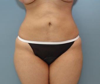 Liposuction to Full Abdomen and Full Back
