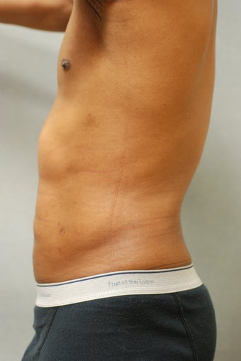 SmartLipo™  Restoration of a Male's Abs