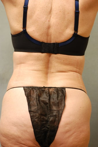 SmartLipo™  65 Yr Old Female  Abs/upper & Lower Flanks, Waist