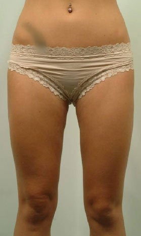 Laser Liposuction of Thighs