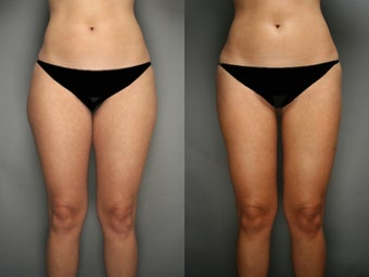SmartLipo Liposuction of Thighs