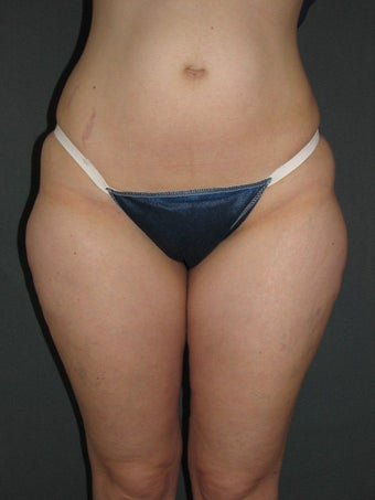 Smart Lipo of Hips, Saddle Bags, and Inner Thighs
