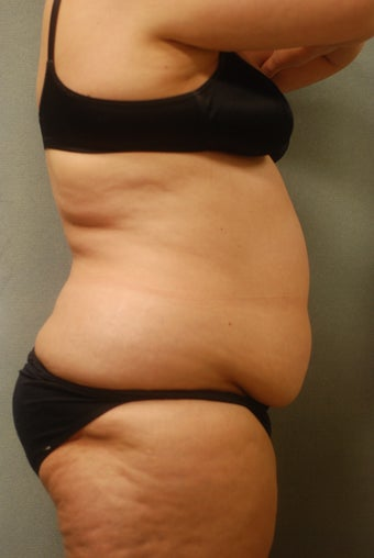 SmartLipo Complete Wrap around