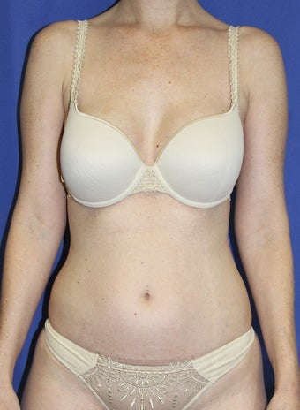 Laser-assisted Liposuction
