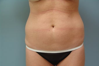 Smartlipo to Full Abdomen and Hip Rolls