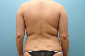 Smartlipo to Full Back