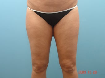 Inner Thigh Smart Liposuction