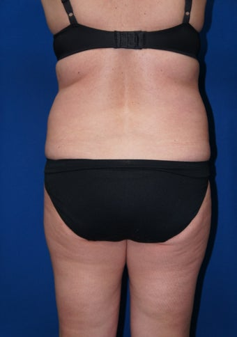 "Smart Lipo for back rolls and ""muffin top"""