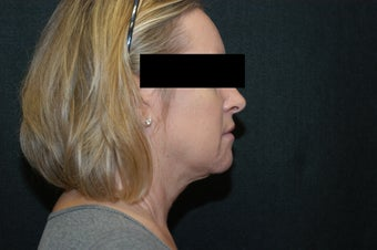 SmartLipo MPX Neck and Jowls