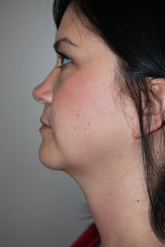 SmartLipo to the neck