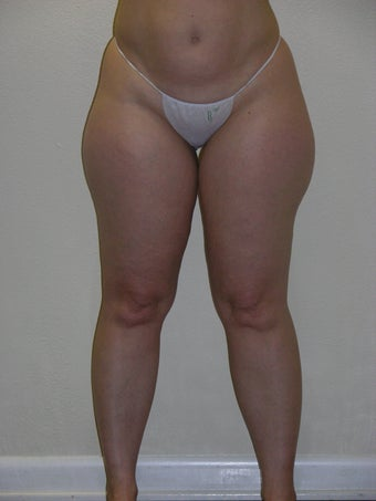 smartlipo of inner/outer thighs