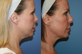 Smart Lipo MPX neck liposuction