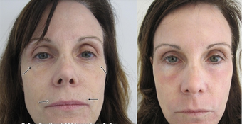 SmartXide Fractional CO2 Resurfacing