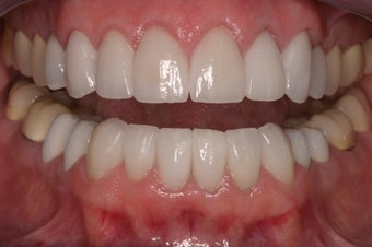 replacement of old restorations and new smile design
