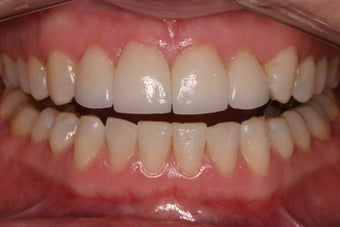 porcelain crowns to close space