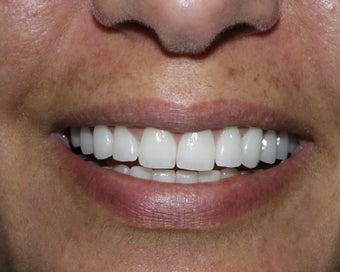 Crowns, Implants and Veneers