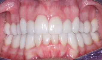 Smile makeover with Invisalign and Crowns