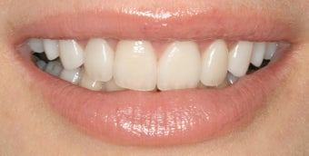 Dental implants, all porcelain restorations, gum re-contouring