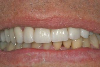 Dental implants, bone graft, all porcelain crowns and veneers
