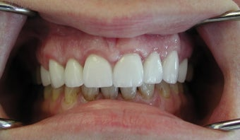 Gum lift (Crown Lengtheing), Root coverage with soft tissue Graft,