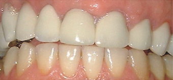 crown lengthening on temporary crowns