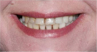 Smile Makeover with crowns and veneers