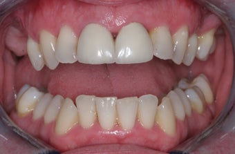 Invisalign, implants, whiteing and veneers