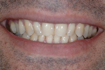 Smile Makeover with Porcelain Crowns