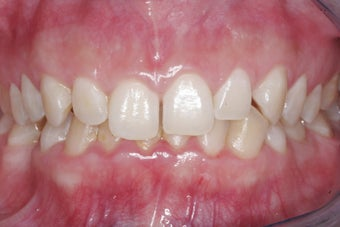 Braces, Gingivectomy, Bonding, Porcelain Crowns, Implant