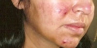 Acne Treatment with Smoothbeam