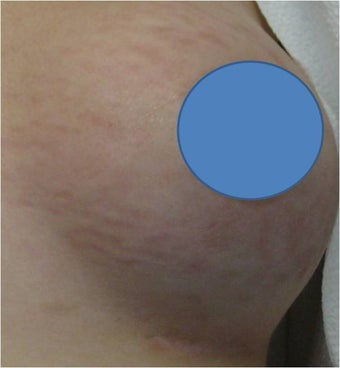 Vascular Laser for Red Stretch Marks of the breast