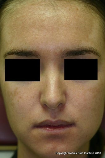 Melanage Chemical Peel for Melasma