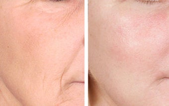 TCA Chemical Peel with 35% TCA
