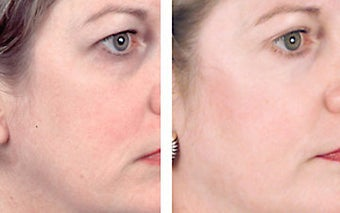 Facial chemical peel with 35% TCA