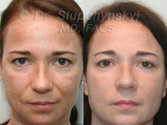 Obagi Blue Peel, Upper and Lower Blepharoplasty