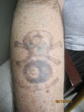 5/10 Laser Tattoo Removal Treatments- Black Tattoo