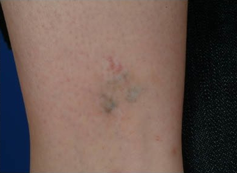 QSR Ruby Laser Tattoo Removal