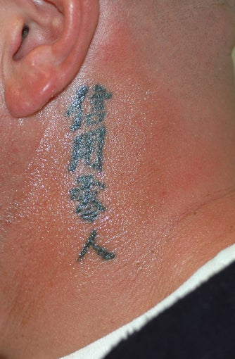 Tattoo Removal Before and After Pictures