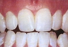 Teeth Whitening (Microabrasion)