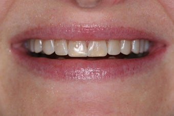 Composite veneers along with whitening