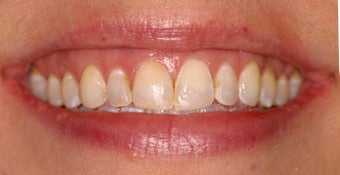 Deep bleaching and porcelain veneers