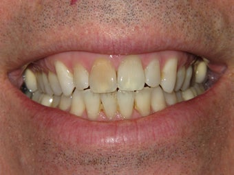 Whitening with walking bleach